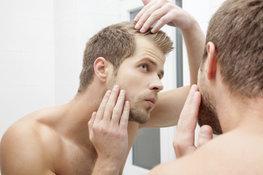 Chute-de-cheveux-homme-4-astuces-contre-le-manque-de-cheveux