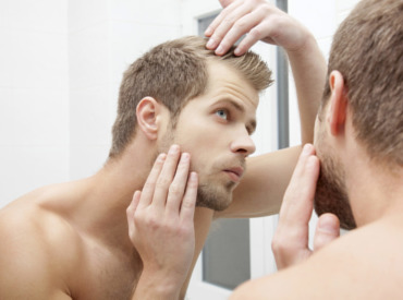 Hair loss in men: 5 styling tips for looking good